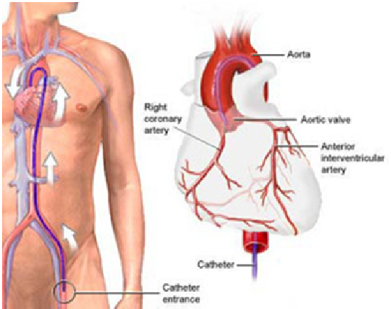 Cardiac-Catherization-and-Coronary