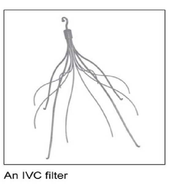 IVC-Filter-Replacement