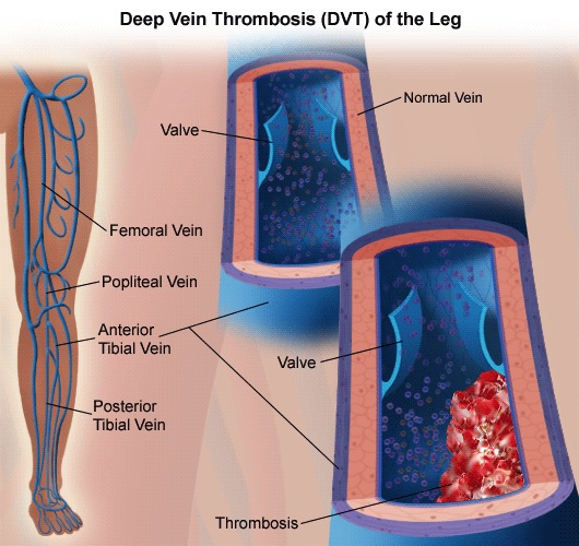 deep-venous-thrombosis-01