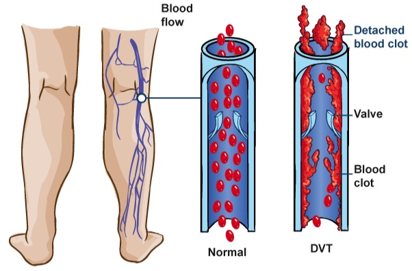 deep-venous-thrombosis-02
